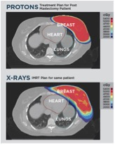 Proton therapy doesn't get as near to the heart and other internal organs as X-ray therapy does. (Image courtesy of Provision Cares Proton Therapy Center.)