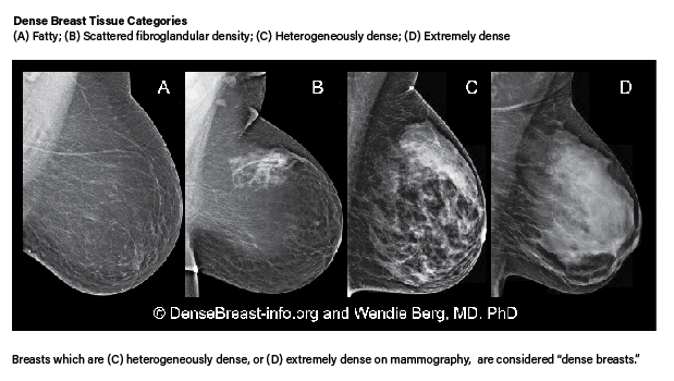 Mammogram Guidelines for Dense breast tissue