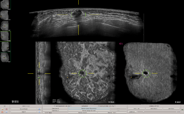This image depicts ABUS images with QVCAD results