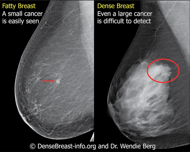 Fatty tissue and breast density may be considered in the context of many factors that affect the occurrence and detection of breast cancer