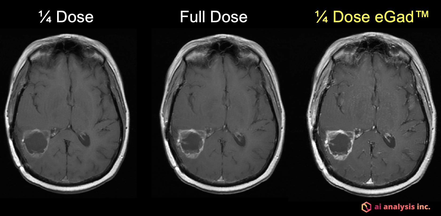 This image is of an 80 kg woman with a newly diagnosed IDH-wildtype glioblastoma