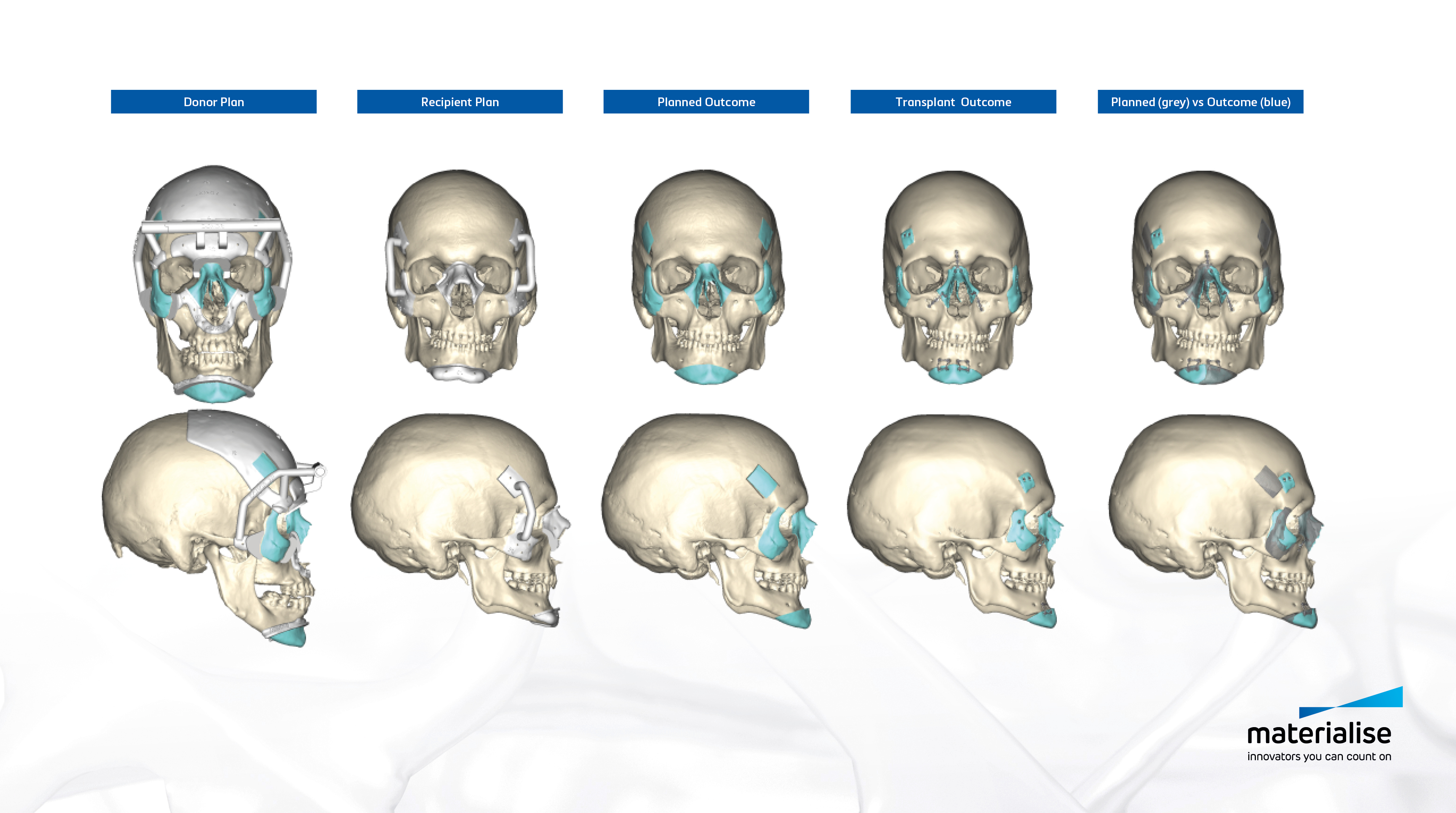 Pre-surgical planning made it possible for surgeons to virtually select and position various medical implants to predict the optimal anatomical fit.