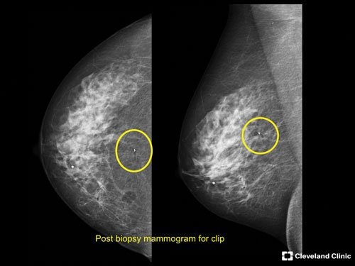 stereotactic breast imaging