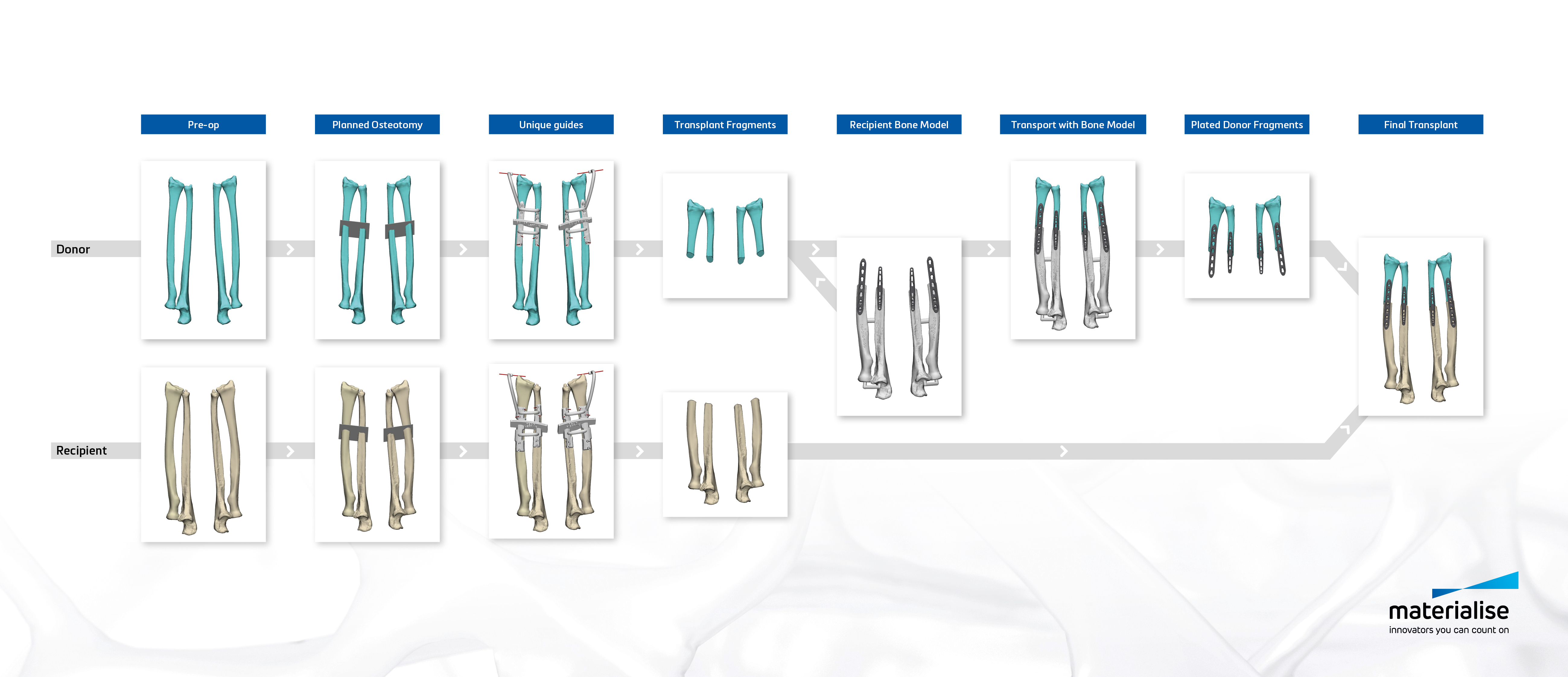 Image-based planning and medical 3D printing have completely revolutionized personalized patient care by providing surgeons with detailed insights and an additional level of confidence before entering the operation room.