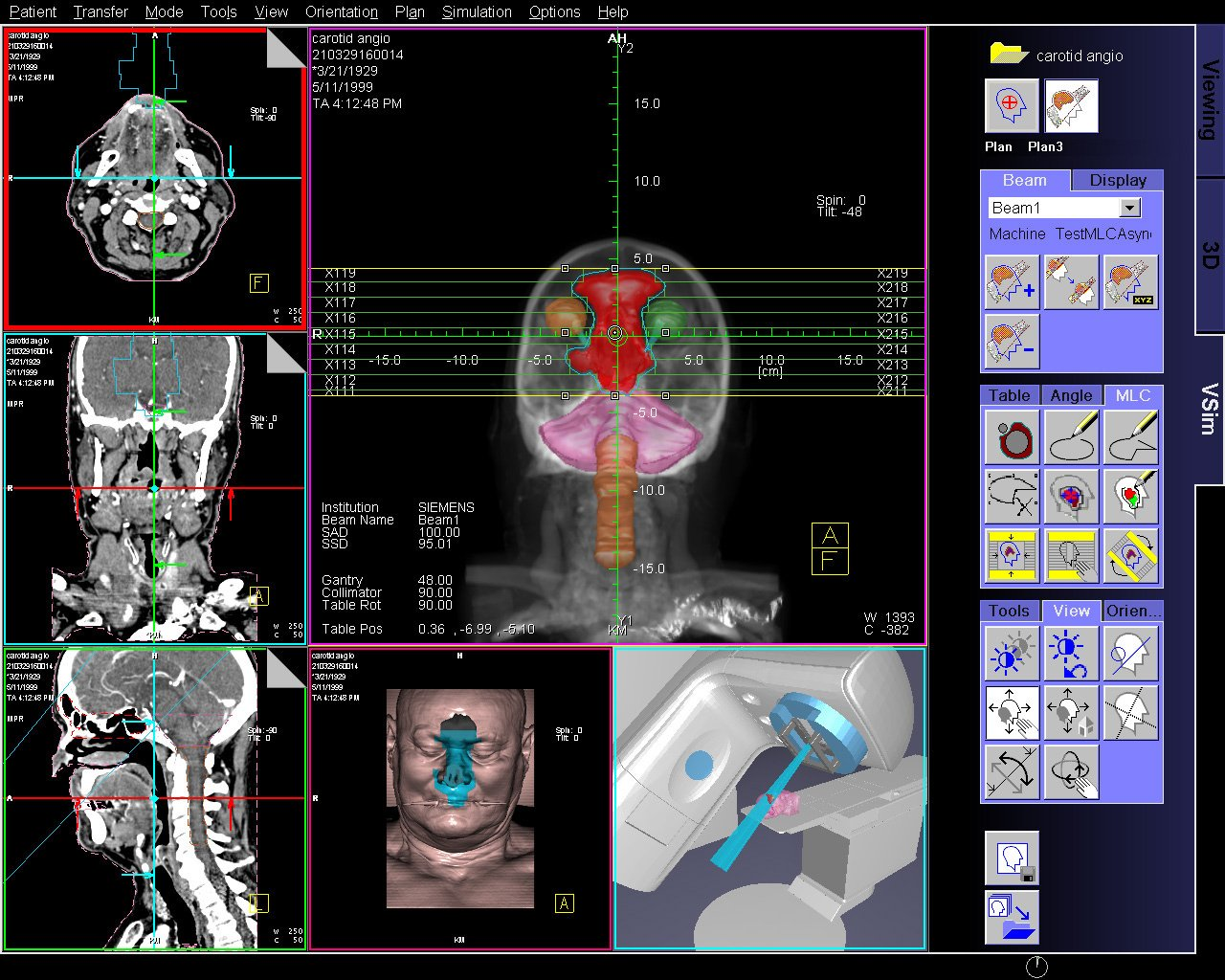 An Introduction To Current Radiation Therapy Treatment