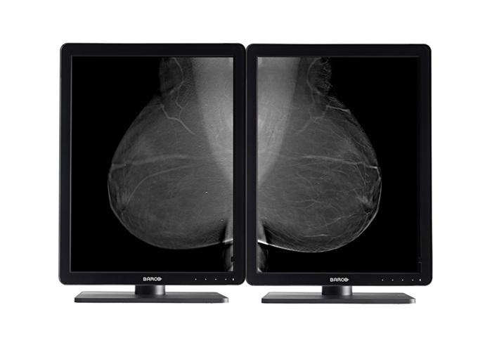 Flat panel displays, barco nio, mammography