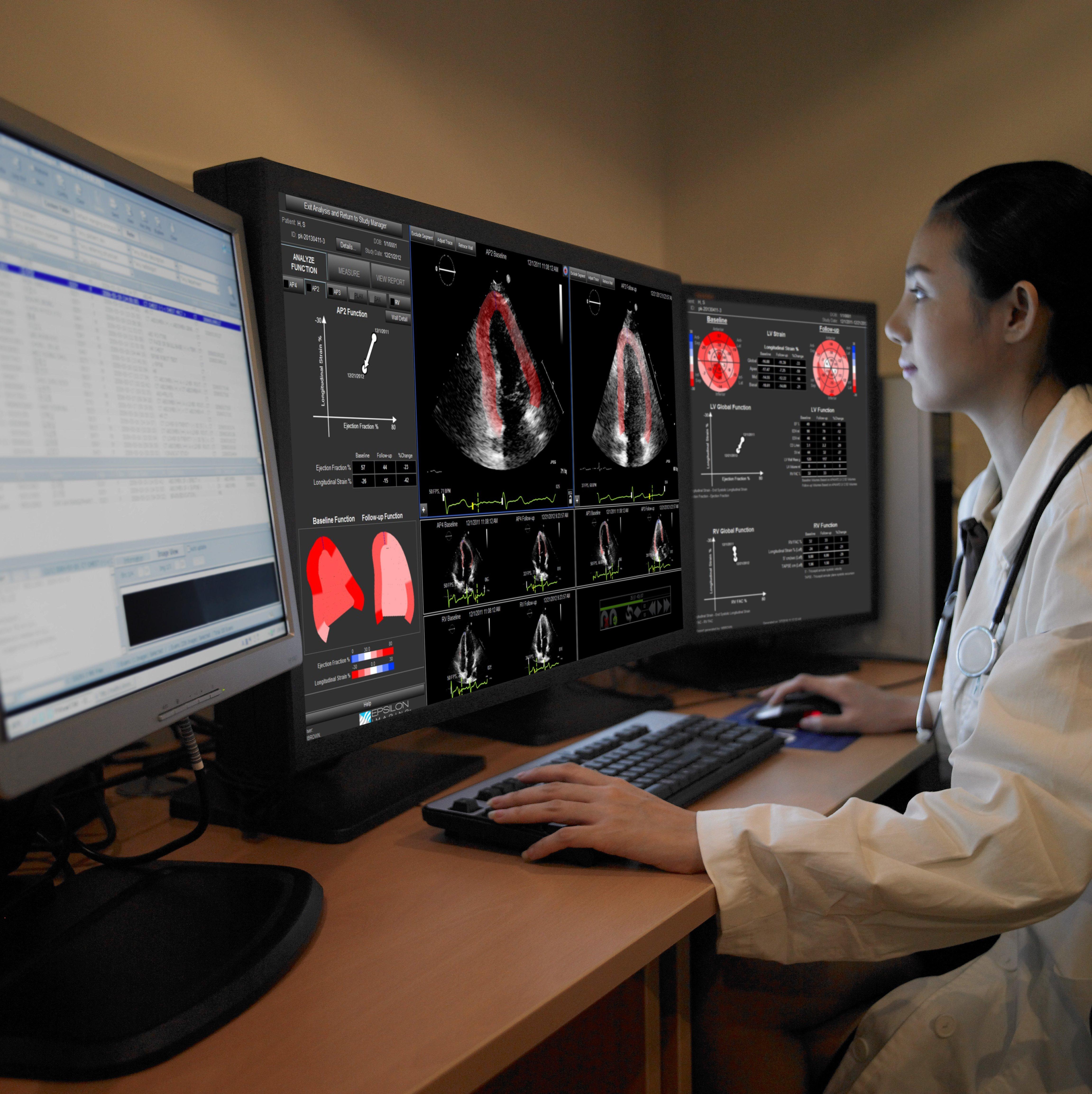 cardio-oncology, echo strain assessment, echoinsight, epsilon