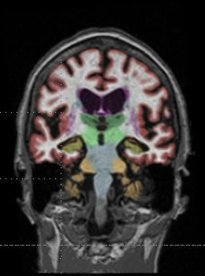A brain MRI. Gadolinium contrast agents (GBCAs) are partly retained in the brain, raising safety concerns. Gadolinium deposition in the brain has raised concerns about Gadolinium toxicity.