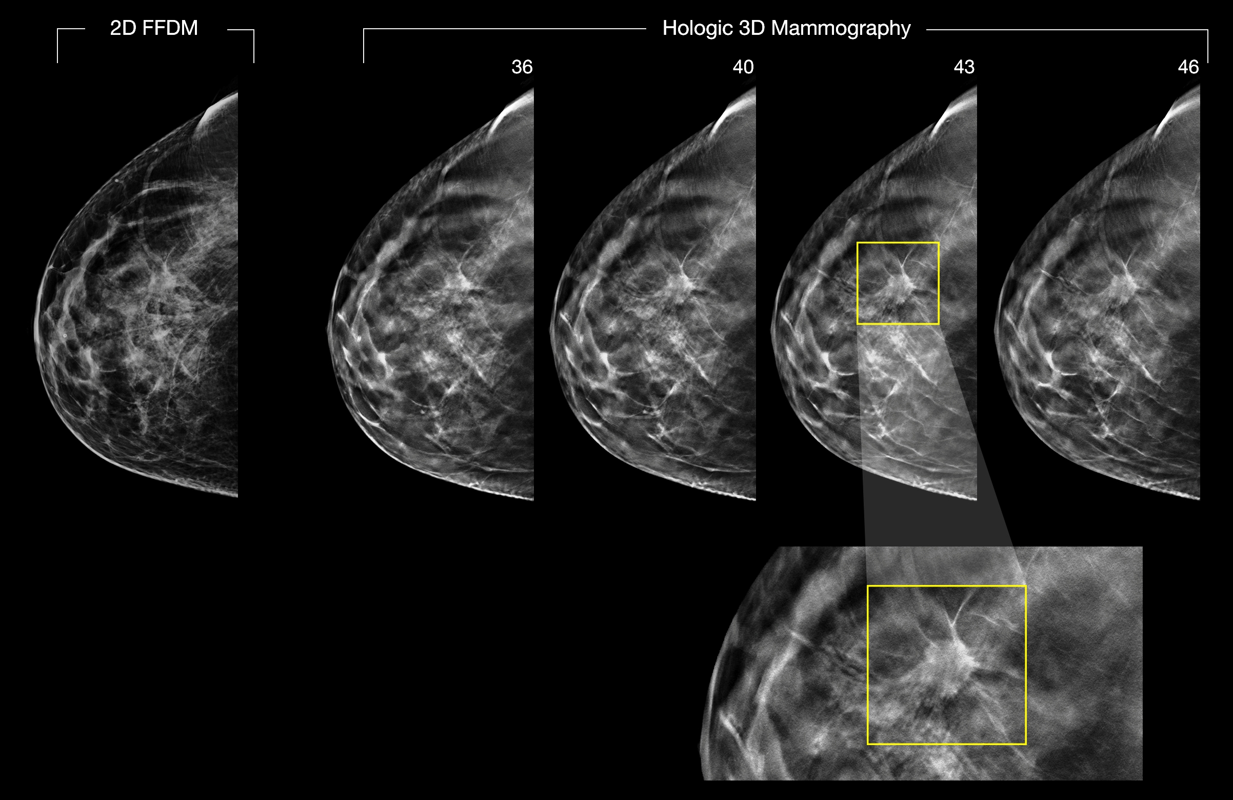 2-D and 3-D digital breast images