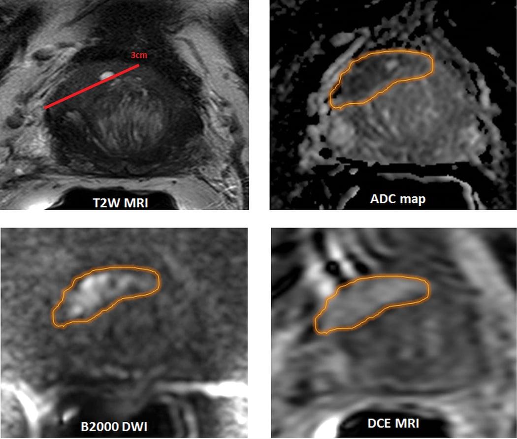 multiparametric mri prostate cancer