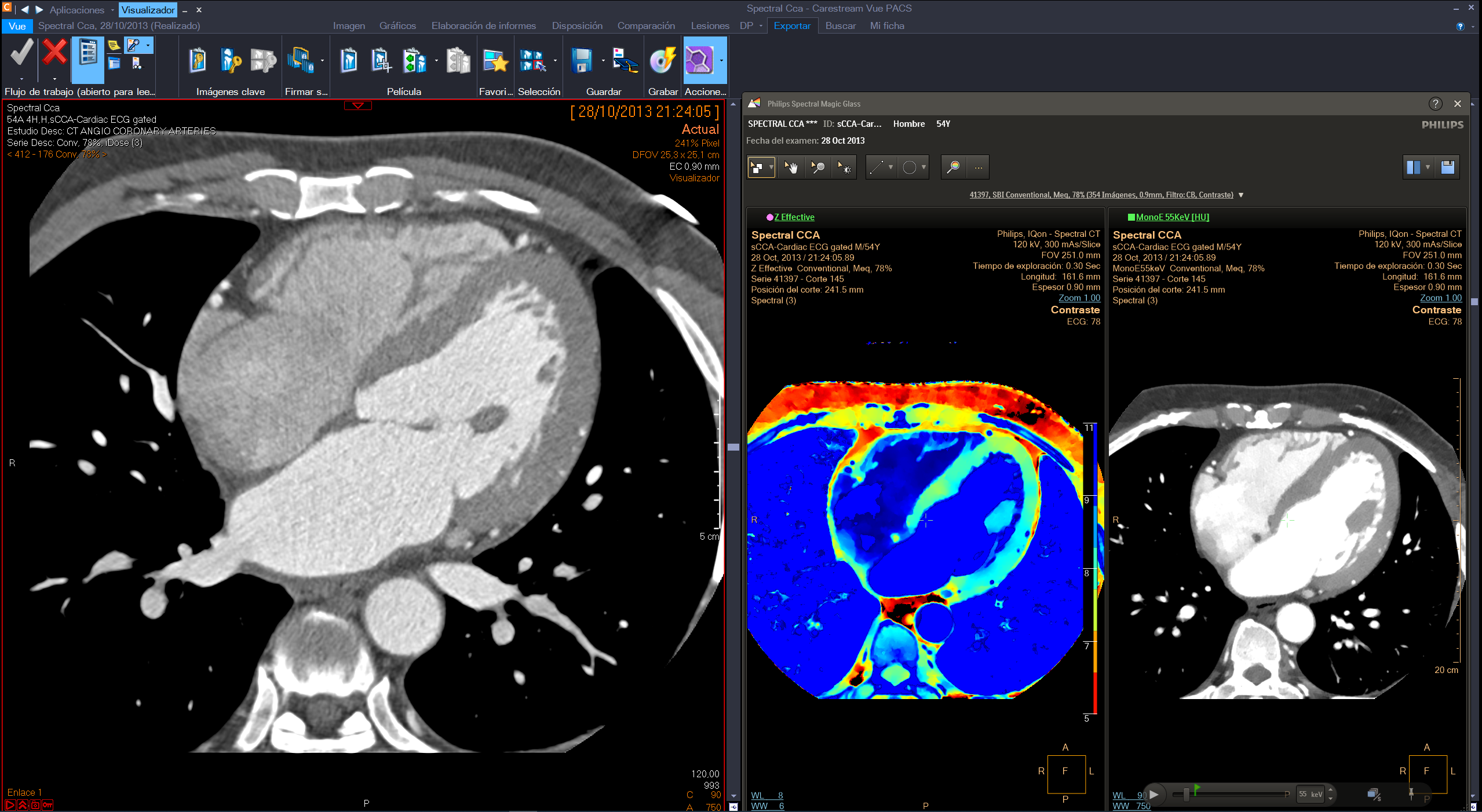 Philips integrated the IntelliSpace Portal advanced applications with the Philips diagnostic viewer (from Carestream) creating a combined radiology diagnostic workspace.