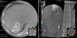 Repeat 3-D CT spin confirms success of embolization