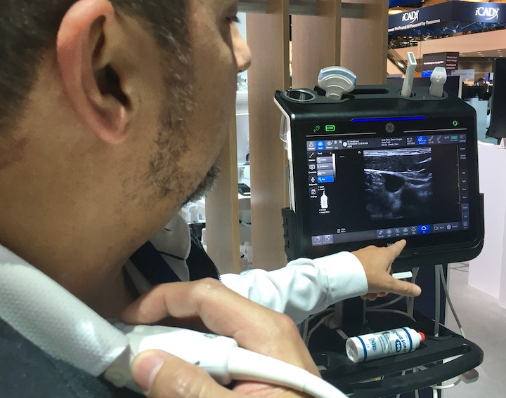 AI is integrated into GE Healthcare's new Venue Go point-of-care ultrasound system (POCUS) to automate image measurements and track them over time withe repeat imaging on the same patient. It is an example of the large imaging vendors integrating AI into their products.