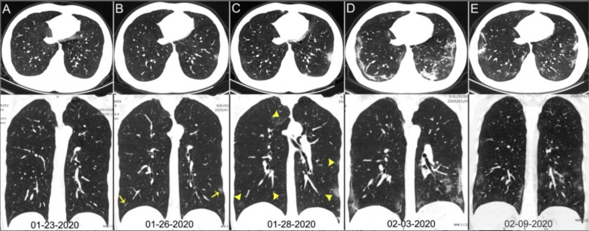 Chest CT images of a 29-year-old man with fever for 6 days. RT-PCR assay for the SARS-CoV-2 using a swab sample was performed on February 5, 2020, with a positive result. (A column) Normal chest CT with axial and coronal planes was obtained at the onset. (B column) Chest CT with axial and coronal planes shows minimal ground-glass opacities in the bilateral lower lung lobes (yellow arrows). (C column) Chest CT with axial and coronal planes shows increased ground-glass opacities (yellow arrowheads). (D column) Chest CT with axial and coronal planes shows the progression of pneumonia with mixed ground-glass opacities and linear opacities in the subpleural area. (E column) Chest CT with axial and coronal planes shows the absorption of both ground-glass opacities and organizing pneumonia. Image courtesy of Radiology. SARS‐CoV‐2