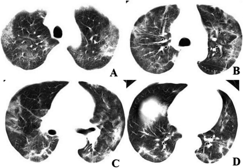 Figure 3: Chest CT imaging of patient 2. A-D, CT images showed multi-focal GGO and mixed consolidation that most appeared at peripheral area of both lungs. The CT involvement score was 11. Image courtesy of Radiology