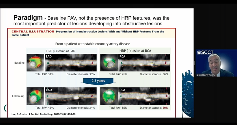 Coronary CT plaque assessment