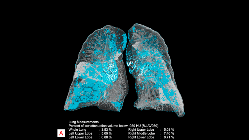 A smart algorithm from Siemens Healthineers analyzes and quantitates measurements in chest CT images. Image courtesy of Siemens Healthineers