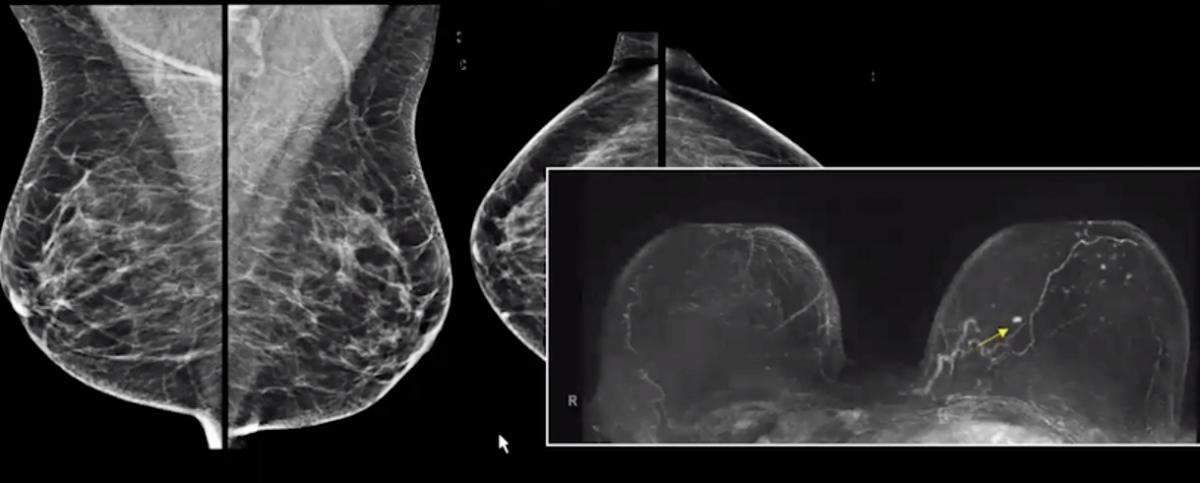 Breast MRI showing a clear cancer vs. patient mammogram showing dense breast tissue that masks the cancer.