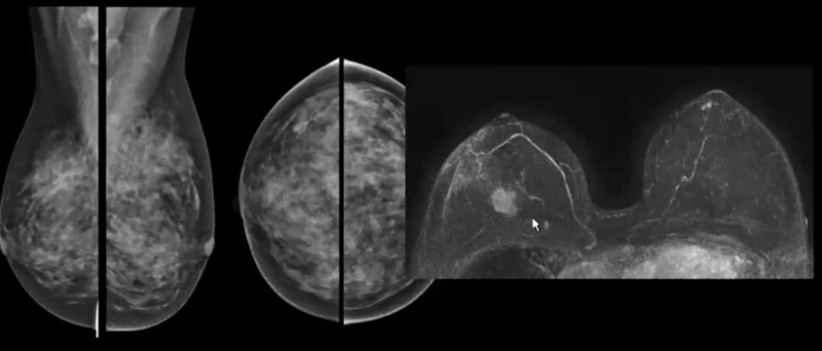 Mammogram vs breast MRI, showing cancers can be masked by dense breast tissue.