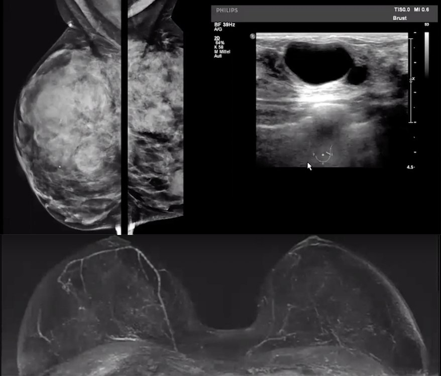 Mammogram of a very dense breast, breast ultrasound and breast MRI showing patient has no cancer.