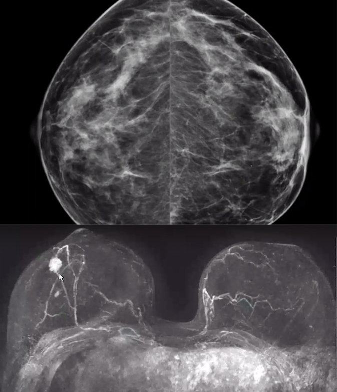 Mammogram versus breast MRI to show a cancer in a patient with very dense breast tissue.