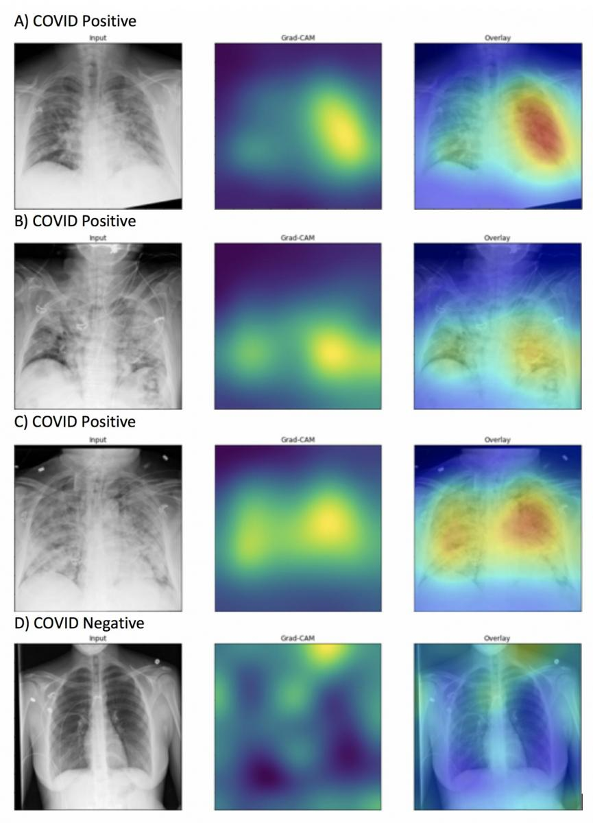 Generated heatmaps appropriately highlighted abnormalities in the lung fields in those images accurately labeled as COVID-19 positive (A-C) in contrast to images which were accurately labeled as negative for COVID-19 (D). Intensity of colors on the heatmap correspond to features of the image that are important for prediction of COVID-19 positivity. Image courtesy of Northwestern University. #RSNA #RSNA20 #RSNA2020