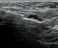 sampling axillary lymph nodes