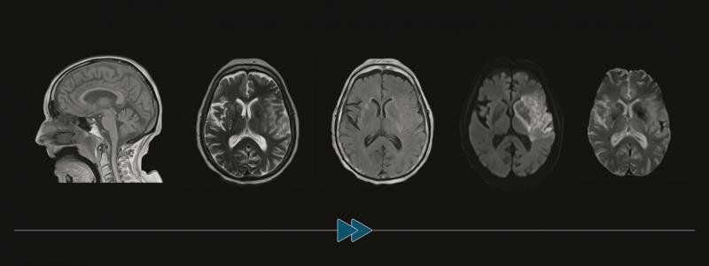 New Brain MR Efficiency Applications
