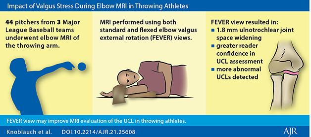 Because standard positioning for elbow MRI is often suboptimal for UCL rendering, Knoblauch, Arizona Diamondbacks head team physician Gary Waslewski, and colleagues piloted their study to assess FEVER view impact on ulnotrochlear (UT) joint space measurement and UCL reader evaluation, as incorporated with conventional elbow MRI.