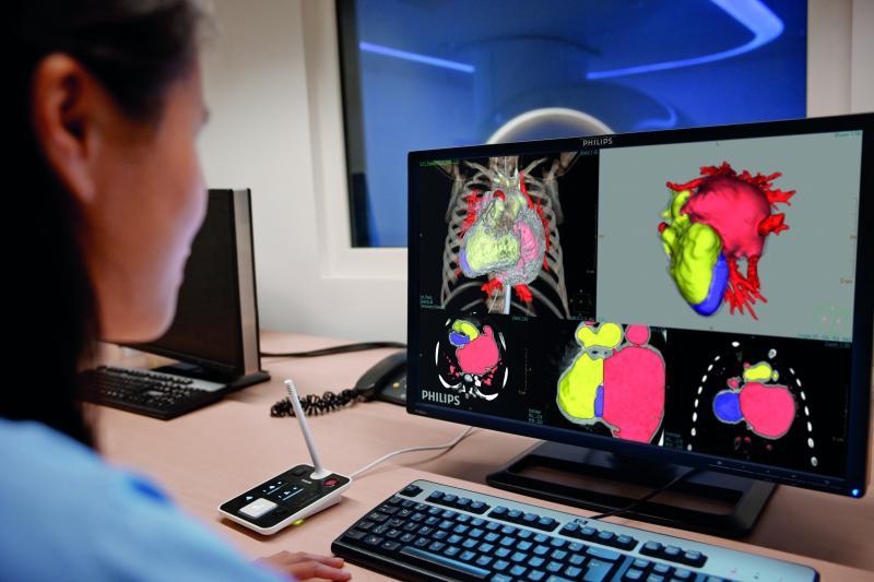 An IntelliSpace Portal user post processes cardiac images.