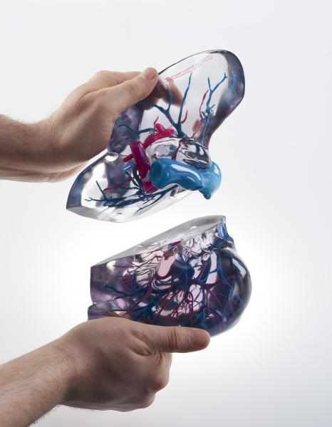 3D printing of the heart and coronary artery tree from a patient's CT scan.