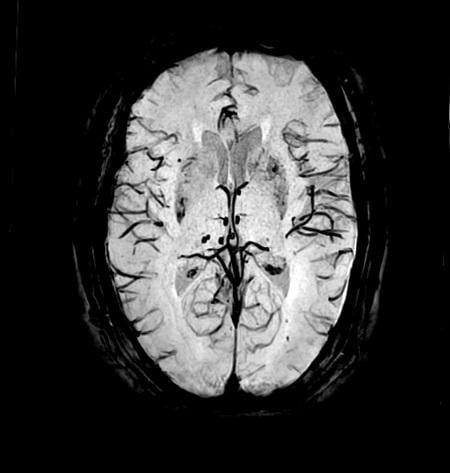 Brain image taken on an Echelon Oval 1.5T MR scanner