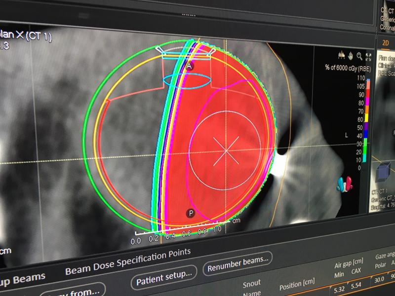 Proton therapy for the eye treatment plan shown by RaySearch at AAPM 2019. #AAPM2019 #AAPM