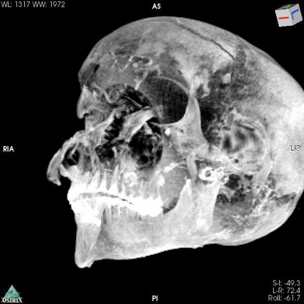 3D Virtual Reality image of the pharaoh's skull