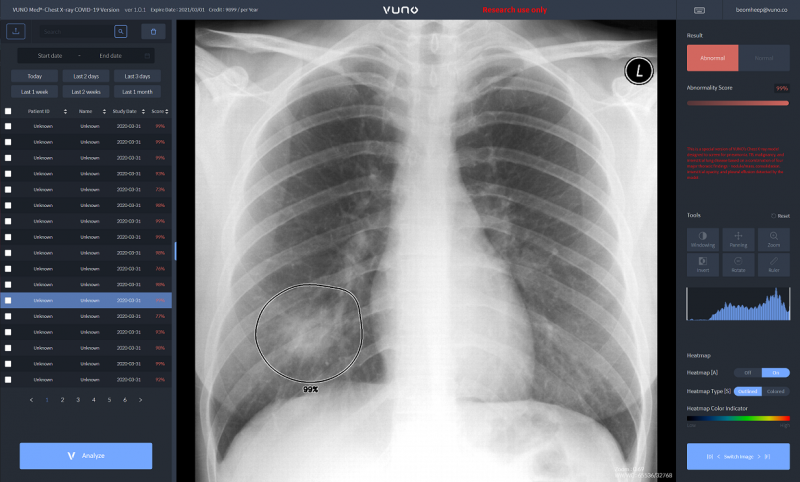 #COVID19 #Coronavirus #2019nCoV #Wuhanvirus #SARScov2 the company is now offering a suite of AI solutionsVuno Med-LungQuantand Vuno Med-Chest X-rayfor COVID-19, encompassing both lung X-ray and computed tomography (CT) modalities respectively all at once