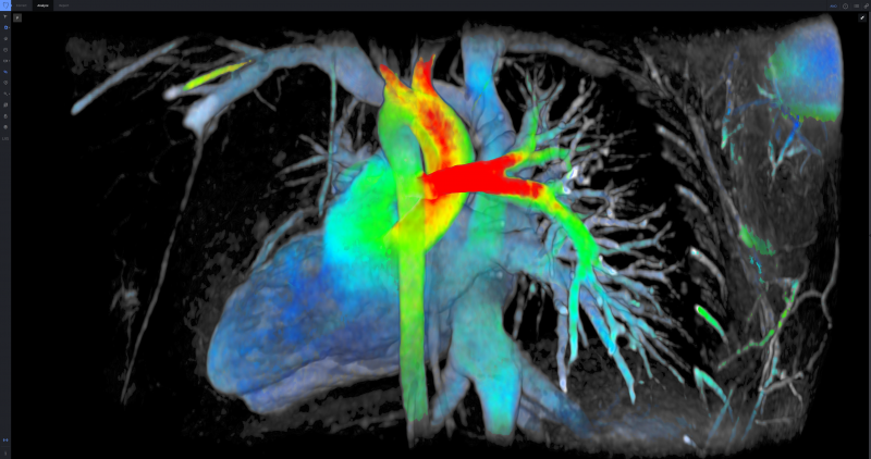 Arterys Partners with GE Healthcare to Launch Viosworks Cardiac Imaging Platform