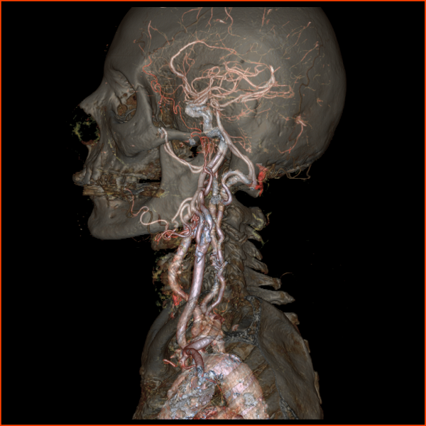 Revolution CT, computed tomography, 256 slice CT, GE Healthcare