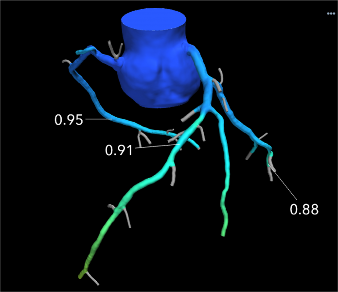 An example of a HeartFlow FFR-CT image showing the blood flow through what looked like a significant blockage on CT angiography alone, actually was not flow-limiting based on computational fluid dynamics. Use of the technology was supposed to reduce the number of diagnostic catheterizations in the FORECAST trial, but the costs of FFR-CT were not offset enough to show cost savings.