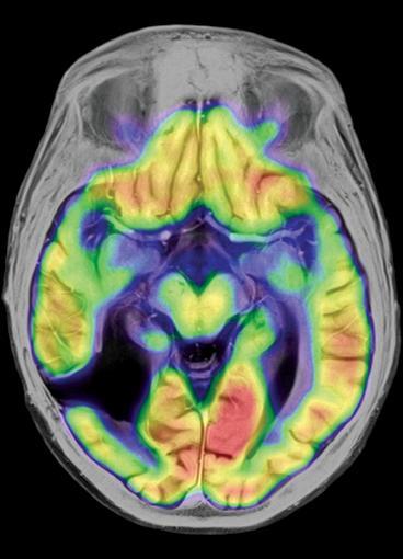 bone marrow imaging