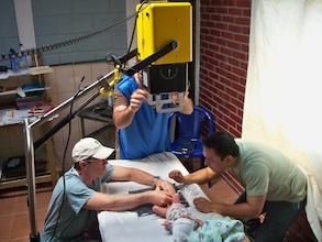 Doctors use a MinXray unit to capture an image of an infant with a clubfoot.