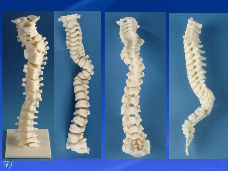 This 3-D printed spine recreation from the Mayo Foundation for Medical Education and Research enables physicians to study varying degrees of curvature of the spine.