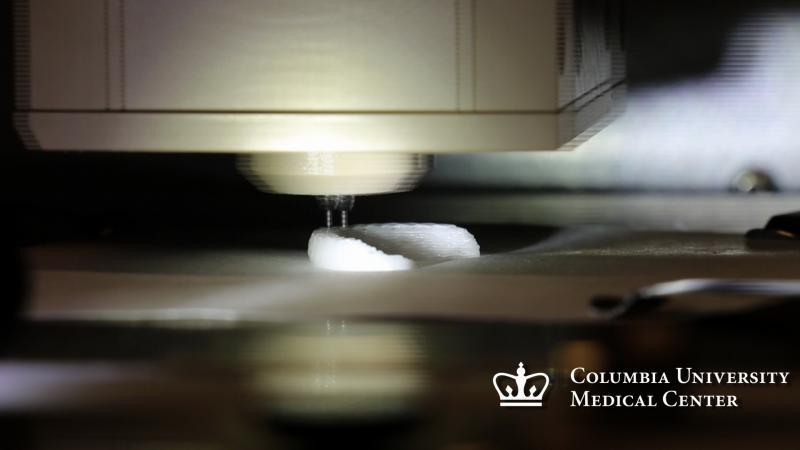 Columbia University Medical Center, 3-D printing, meniscus implant