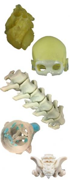 A variety of 3-D printed models displayed by Stratasys at a recent RSNA conference.