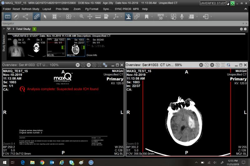 An algorithm developed by MaxQ identifies a CT slice image with signs of a suspected acute intracranial hemorrhage. GE Healthcare is integrating the algorithm and other smart software from third-party vendors into its Edison Open AI Orchestrator. Screenshot courtesy of GE Healthcare