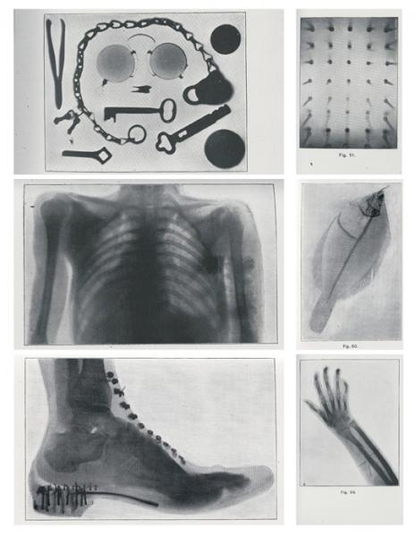 Early historical examples of the use of X-Ray