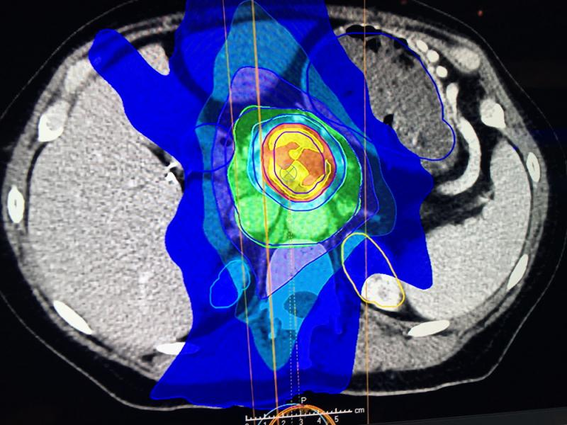 An artificial intelligence (AI) created treatment plan forPancreatic cancer created by the RaySearch software and displayed at ASTRO 2019.