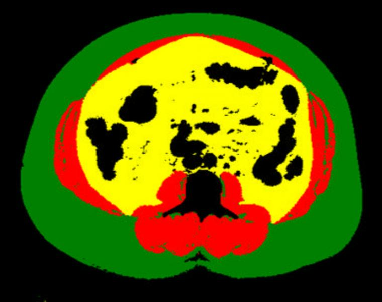 An example of a body composition analysis of an abdominal CT slice with the subcutaneous fat in green, skeletal muscle red and visceral fat in yellow. This was automatically identified and analyzed via a deep learning algorithm to assess the risk for heart attack and stroke in more than 12,000 patients. #RSNA2020 #RSNA20 #RSNA