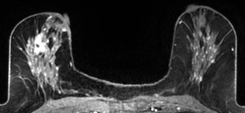 fibroglandular densities, dense breasts, breast cancer