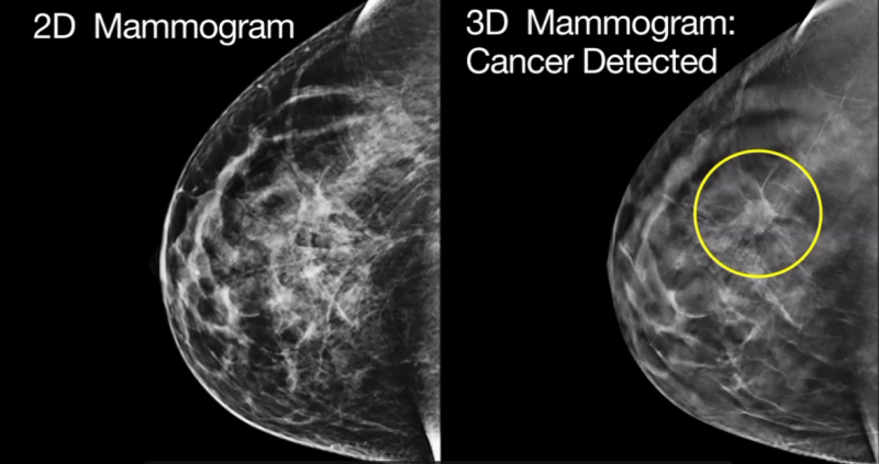 mammography systems rsna 2013 women's healthcare imaging