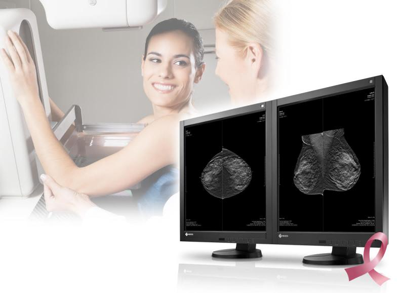 Top list of stories, article, videos for breast imaging.